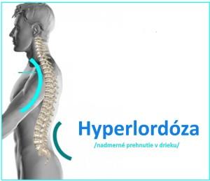 hyperlordoza
